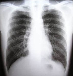 tbc_x_ray